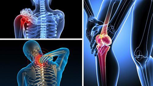 Đau nhức xương khớp là dấu hiệu của nhiều căn bệnh nguy hiểm