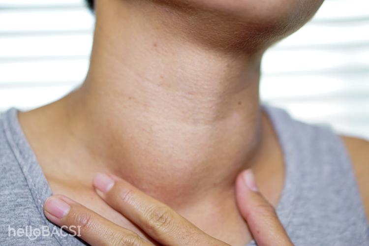 Triệu chứng của bệnh cường tuyến giáp là gì?